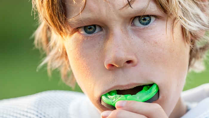 Sports Mouth Guards Dentistry Grand Rapids Dentis