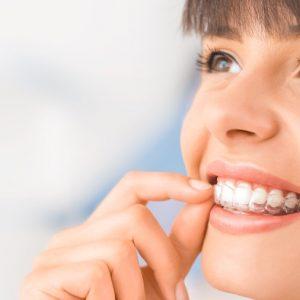 Clear Aligners Grand Rapids MI Dentists